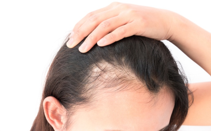 Low Immunity causing hair loss